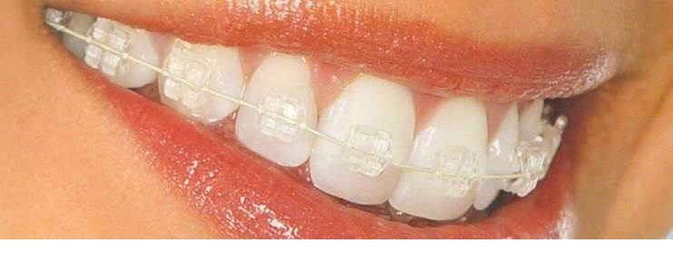 Керамические брекеты на зубах