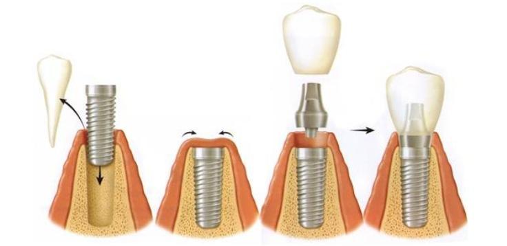 отбеливание зубов капами с гелем в стоматологии