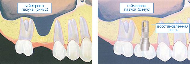 Биология развития рецессий на зубах и имплантатах