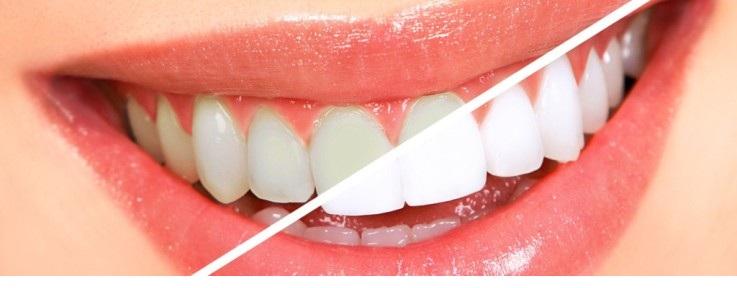 отбеливание зубов фторлаком - как отбелить зубы