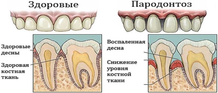 Симптомы пародонтоза