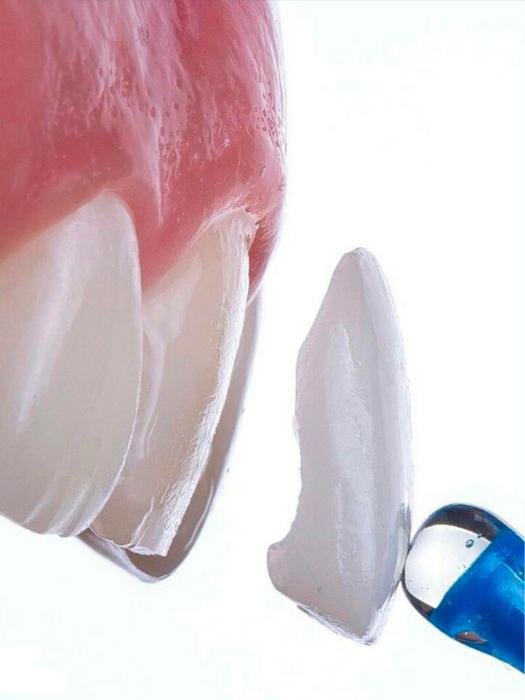 Люминиры на зубы в Мнске