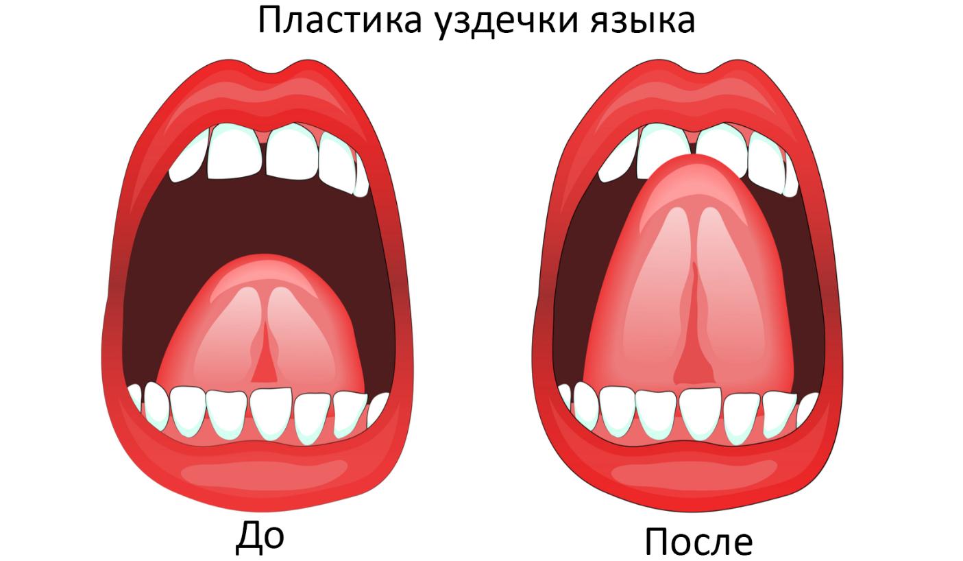 Пластика уздечки языка