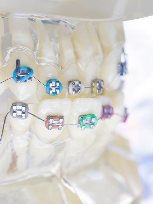Ортодонтия в Минске - стоматология Дентко