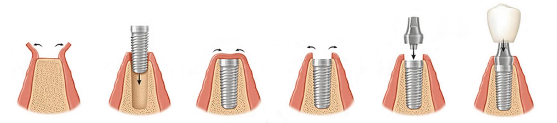 Дентальная двухэтапная имплантация