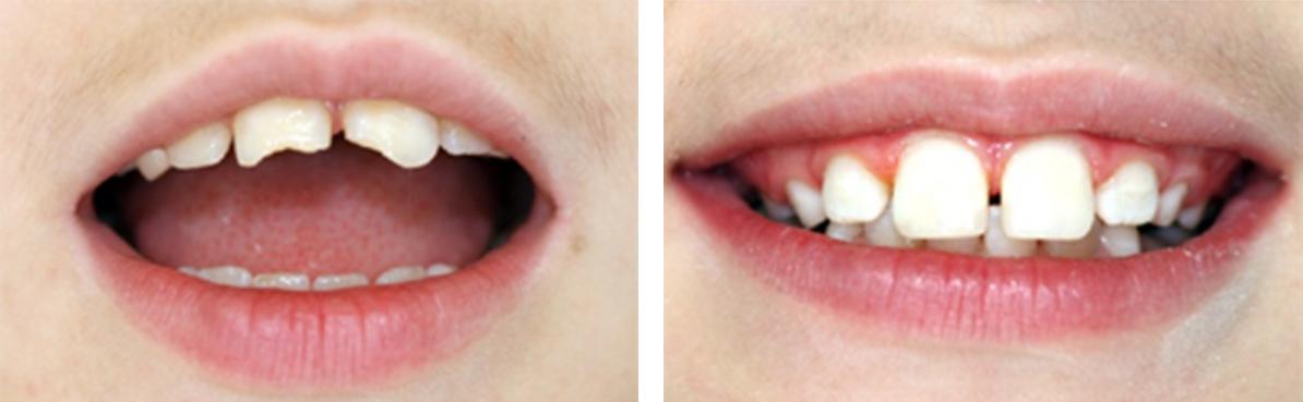 Наращивание зубов, восстановление анатомической формы
