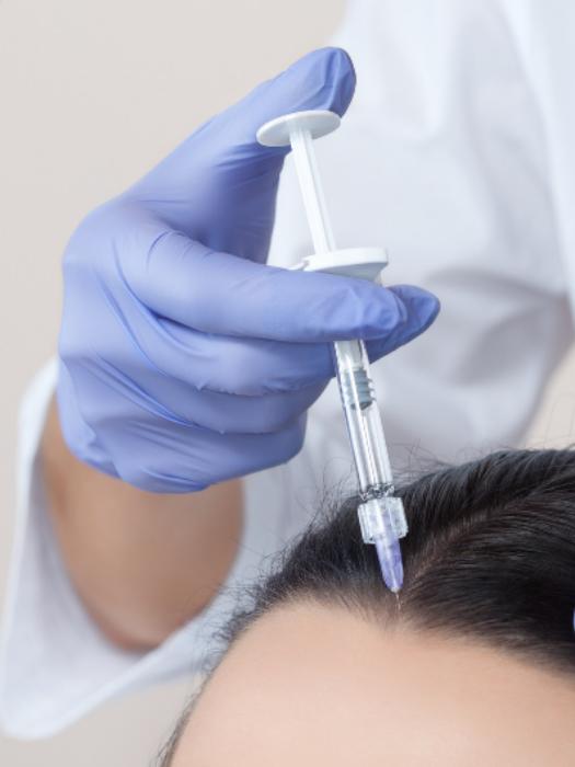 Мезотерапия для волос головы